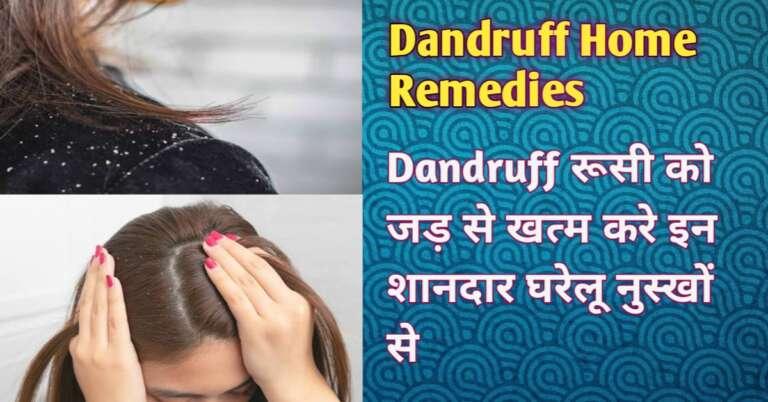 Winter Dandruff Home Remedies in Hindi सर्दियों में रुसी दूर भगाने का घरेलू उपाय